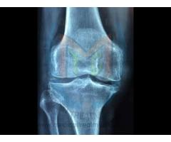 Non-surgical Knee Treatment (Prolozone Therapy) at Dr Chavan's Clinic in Pune